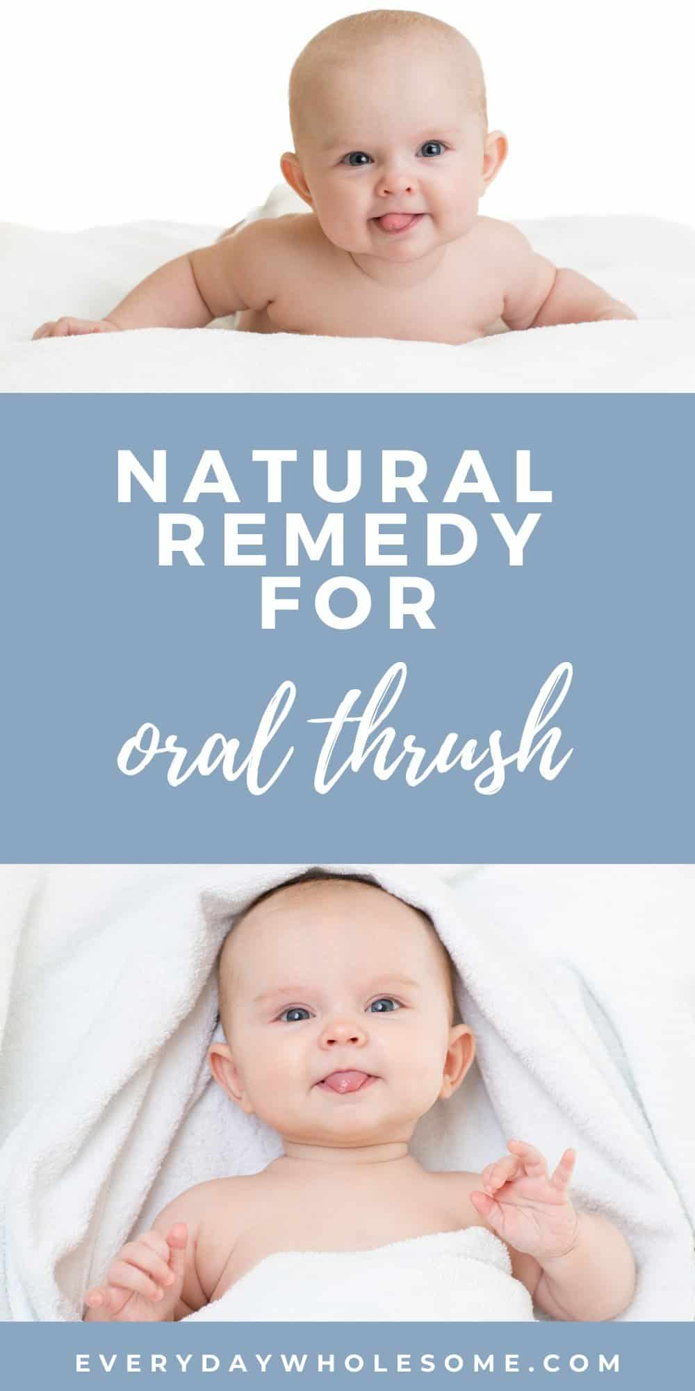 oral thrush yeast natural remedy